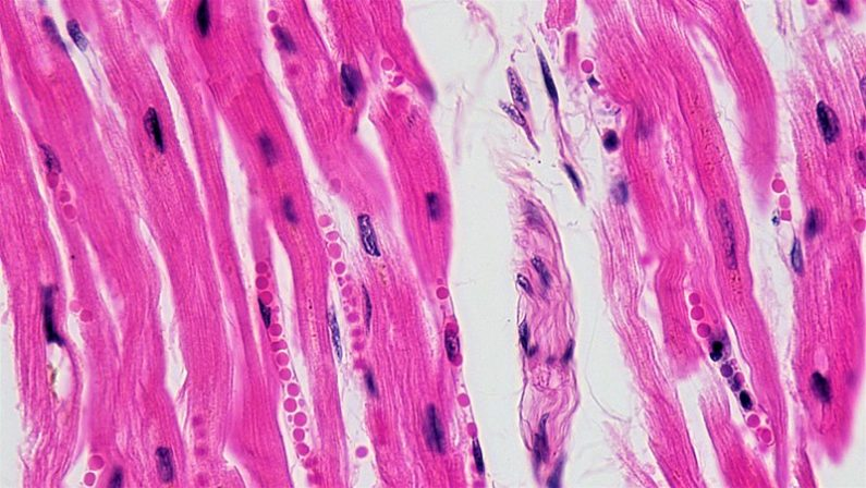 Cardiac Muscle Tissue Viewed under a Microscope