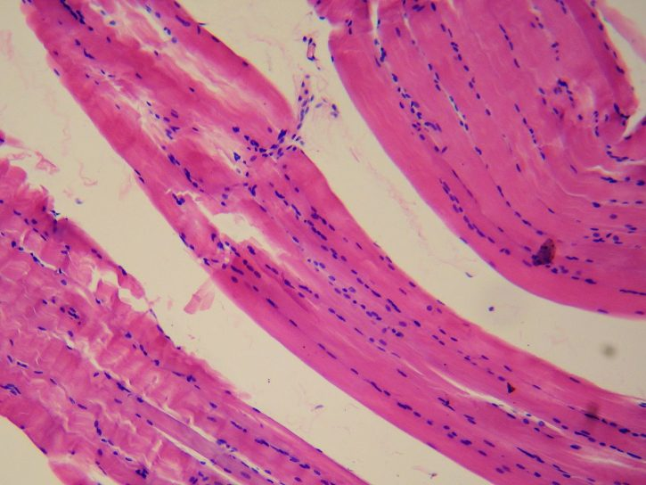Smooth Muscle Tissue viewed under a Microscope