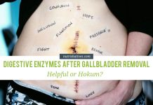 Digestive Enzymes after Gallbladder Removal: Helpful or Hokum